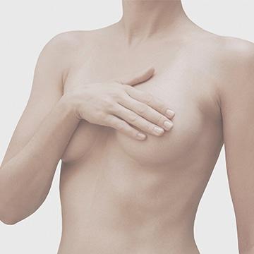 tratamiento cirugia reparadora mamas