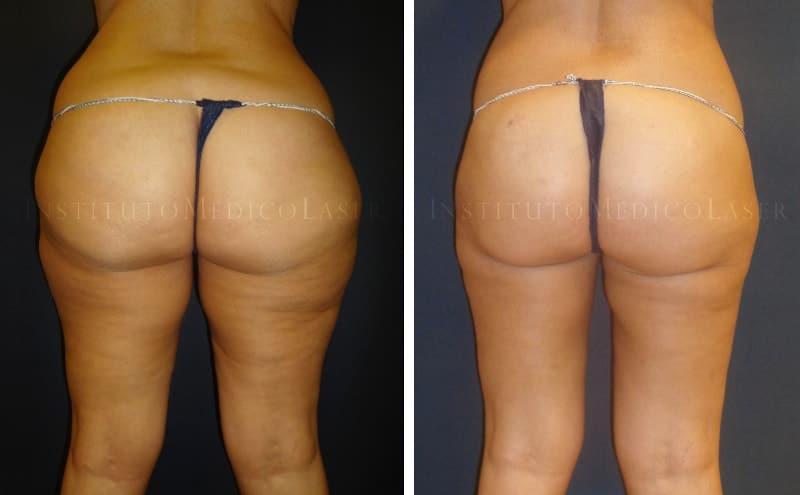 Liposucción láser en iml madrid antes y despues