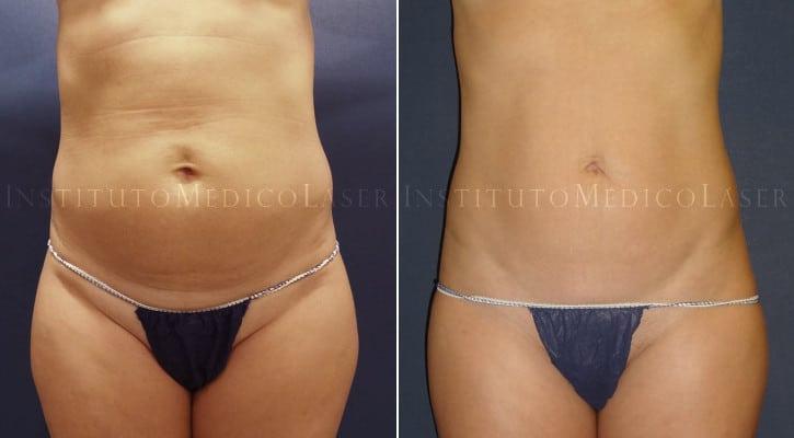 Antes y después de Renuvion en abdomen