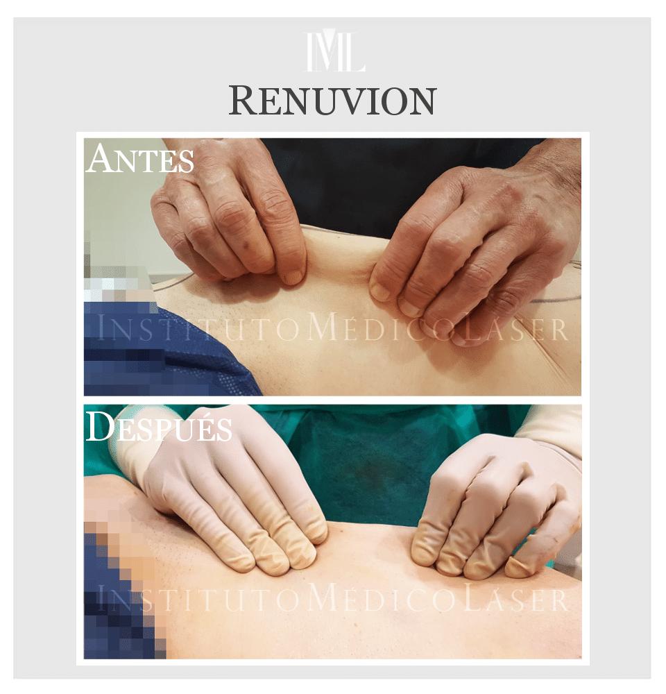 Inmediatamente antes y después de Renuvion