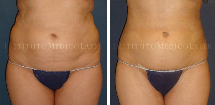 Renuvion en abdomen y costados