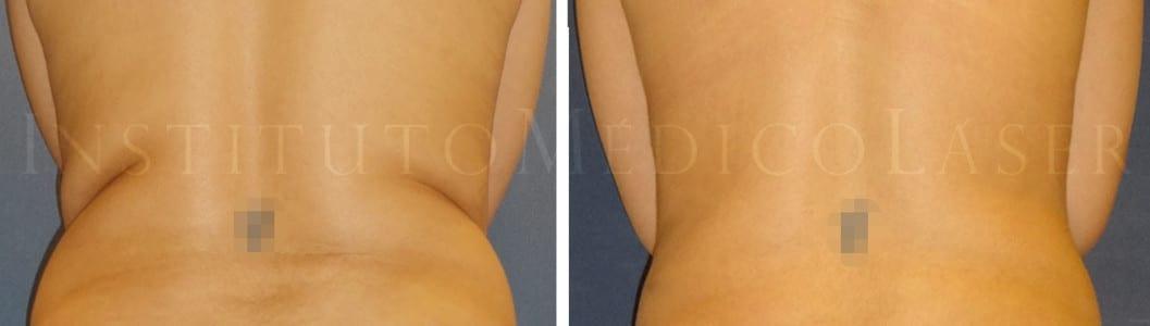 Rollitos de la cintura, antes y después