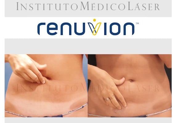 Renuvion antes y después abdomen