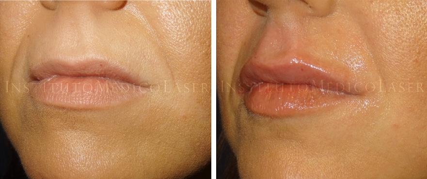 Perfilado de labios antes y después
