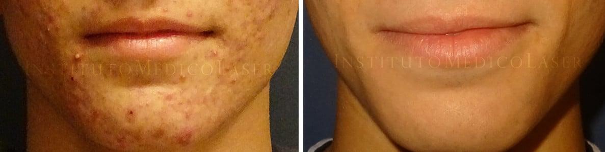 Acné, antes y después