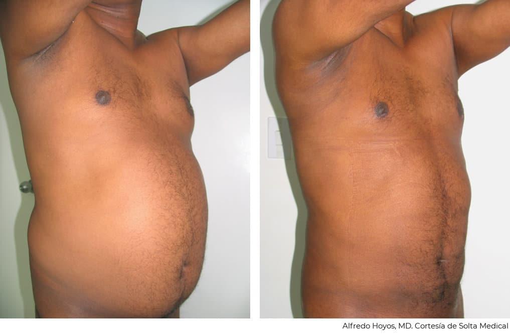 Vaserlipo en abdomen de varón