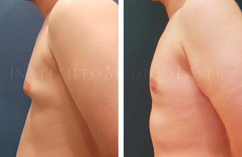 Cirugía de pectorales Vaser