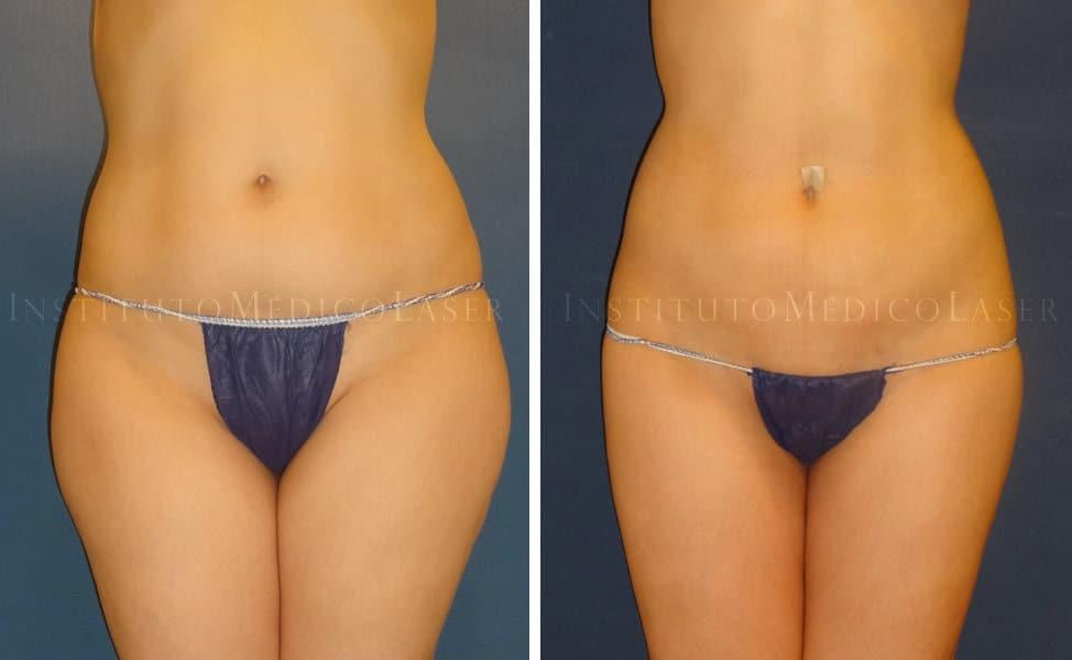 Lipo Vaser en abdomen y trocánteres