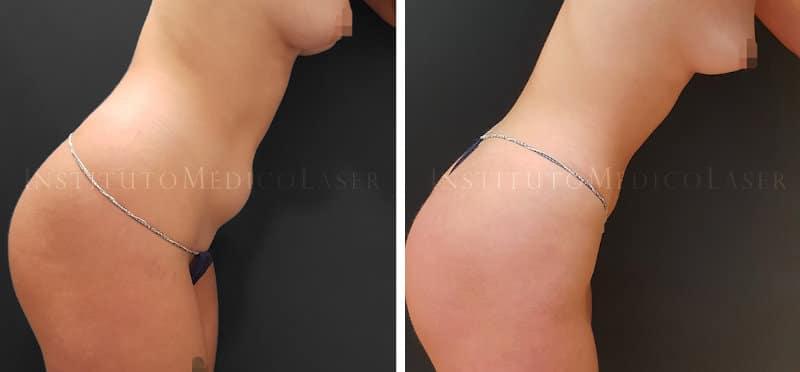 Flacidez abdominal con Renuvion