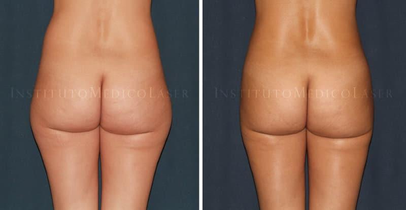Antes y después de Renuvion + Vaser en caderas