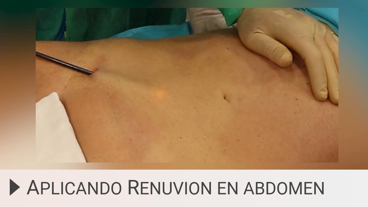 Aplicando Renuvion en abdomen