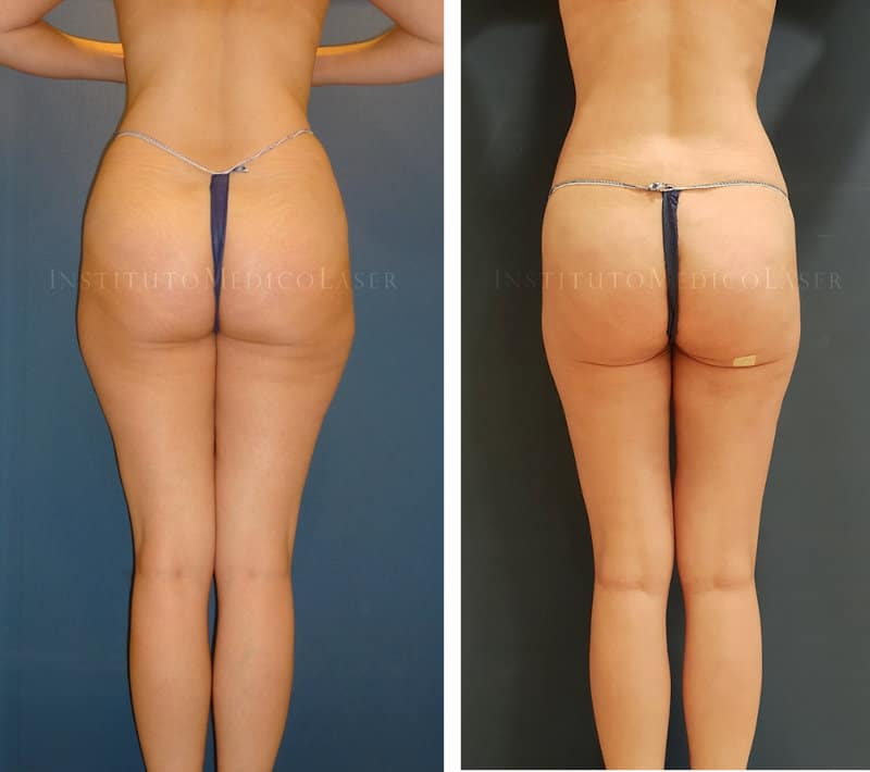 Reducción de caderas y muslos