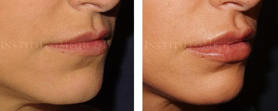 Aumento de labios en IML