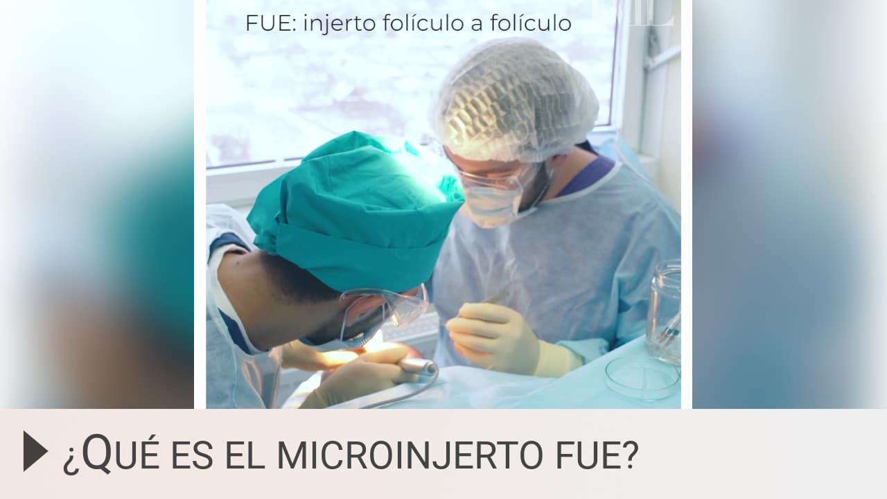 Qué es el microinjerto FUE