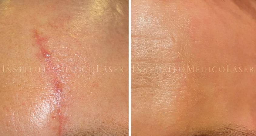 Antes y después cicatriz