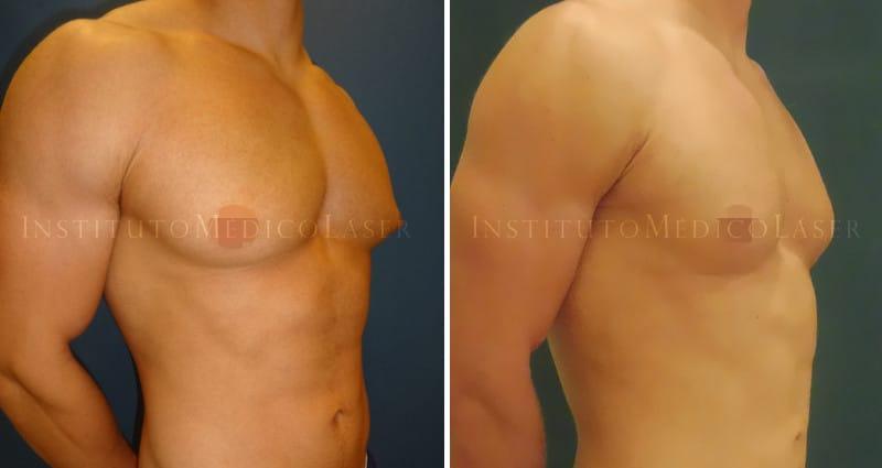 Liposucción Vaser en pectorales (Ginecomastia)