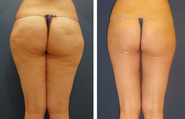 Liposucción Vaser en piernas y glúteos