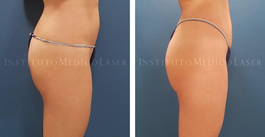 Lipovaser y Renuvion en abdomen