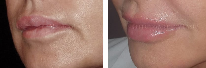 Perfilado y relleno labial
